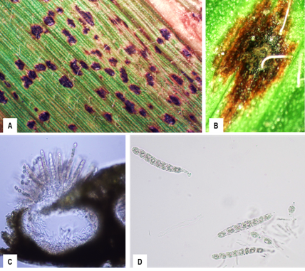 A- Multiple tar spot stroma on a corn leaf, B- A single stroma magnified, C –Phyllachora maydis perithecium,  D- Ascus and ascospores of P. maydis